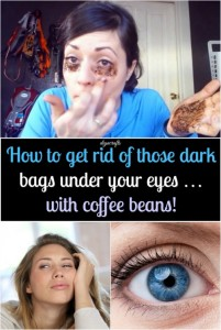 How to Get Rid of Dark Bags under your eyes with Coffee Beans!